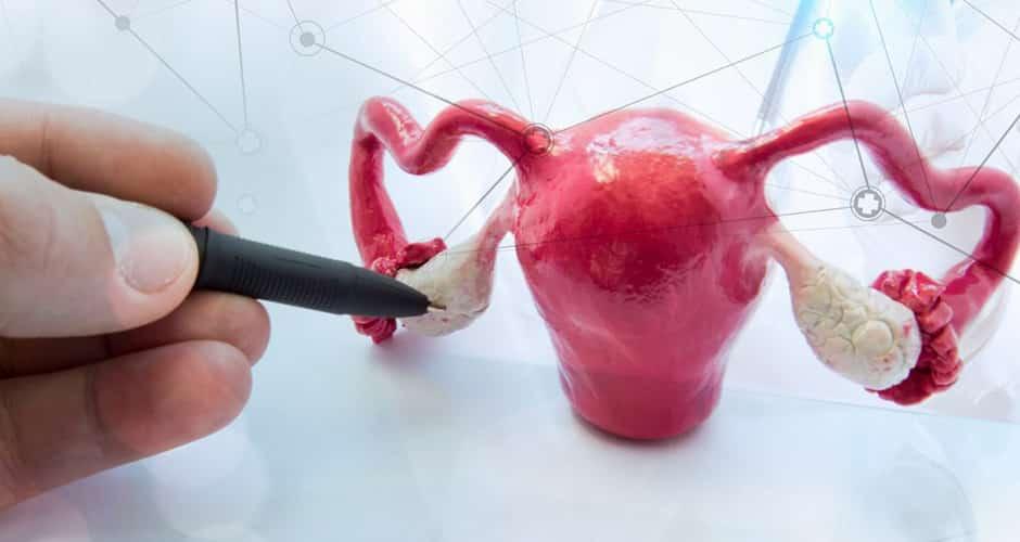 ¿Puedo embarazarme con ovario poliquístico?